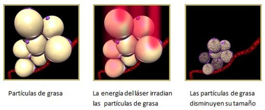 Resultado de imagen para lipolaser no invasiva