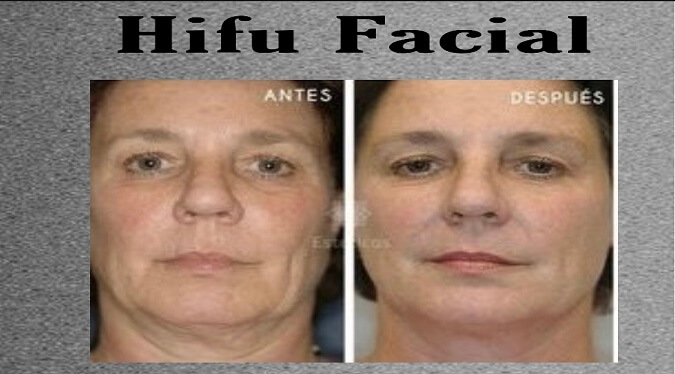 hifu 1
