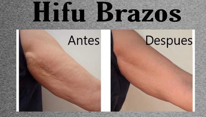 hifu 2