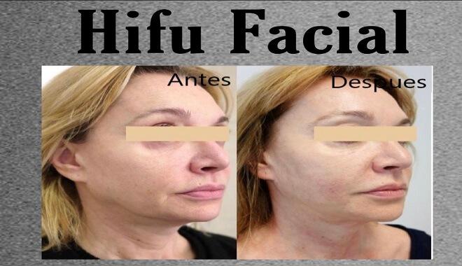 hifu 3